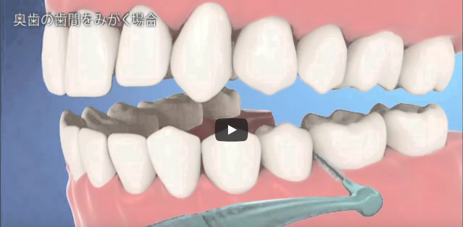 正しい歯間ブラシの使用法